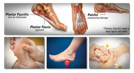 Fast Plantar Fasciitis Cure Review – How to Eliminate Plantar Fasciitis Quickly, All Best Reviews