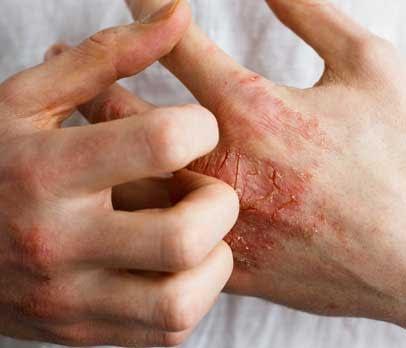 Eczema Free, All Best Reviews
