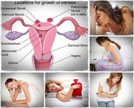 Fibroids Miracle, All Best Reviews