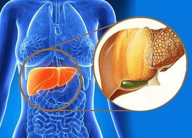 Fatty Liver Remedy, All Best Reviews