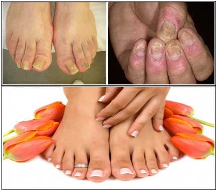 Fungus Key Pro – Destroy Toenail Fungus Naturally by Wu Chang, All Best Reviews